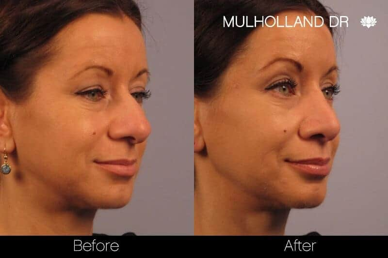 Rhinoplasty - Before and After Gallery - Patient Photo 15