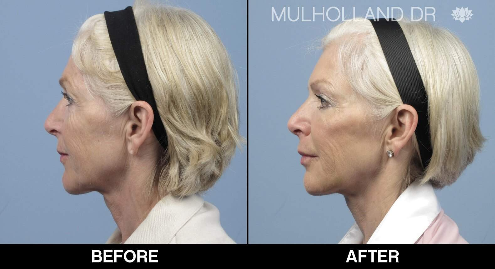 Fractional Erbium Laser - Before and After Gallery - Patient Photo 17