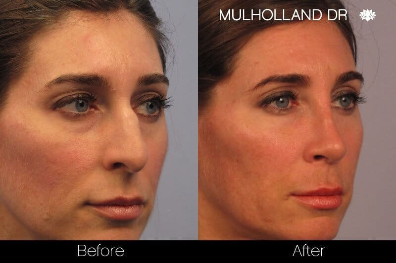 Rhinoplasty - Before and After Gallery - Patient Photo 2