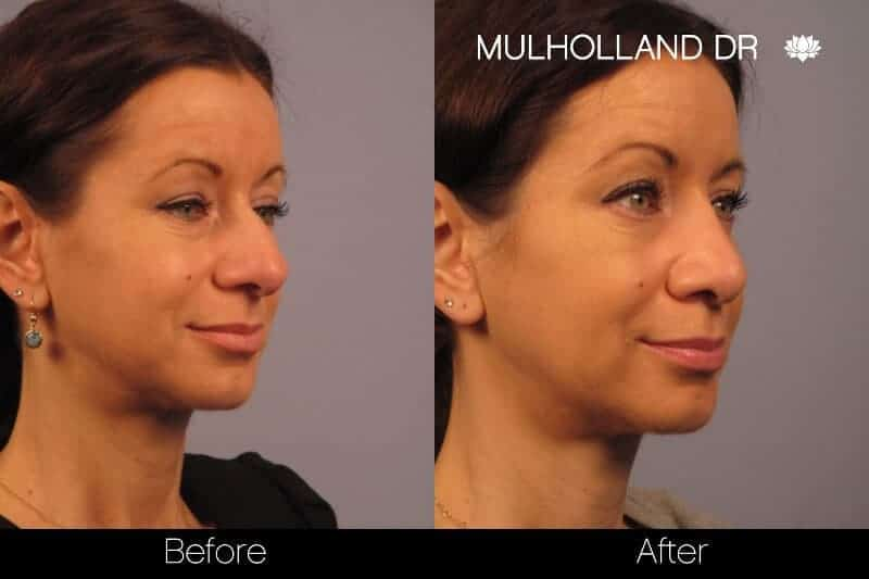 Rhinoplasty - Before and After Gallery - Patient Photo 24