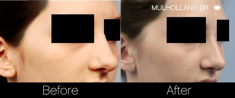 Rhinoplasty - Before and After Gallery - Patient Photo 26