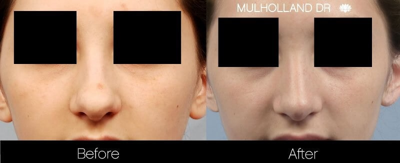 Rhinoplasty - Before and After Gallery - Patient Photo 27