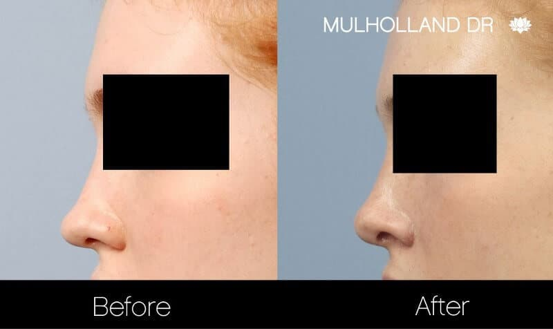Rhinoplasty - Before and After Gallery - Patient Photo 29