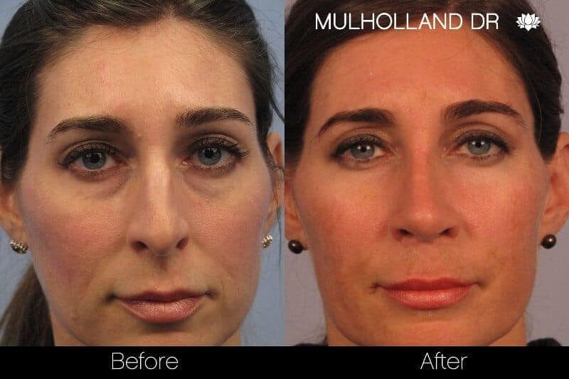 Rhinoplasty - Before and After Gallery - Patient Photo 3