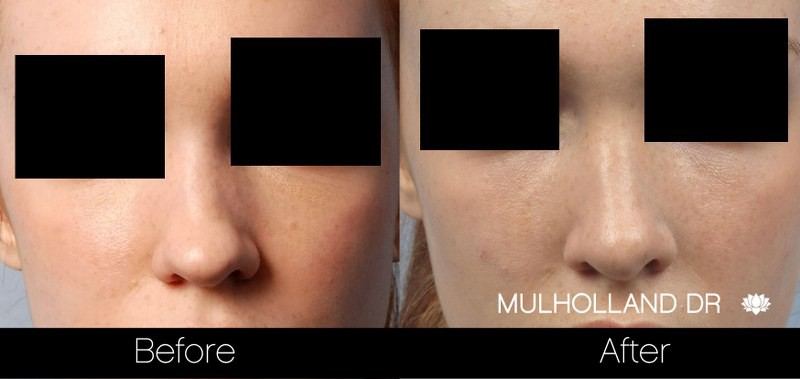 Rhinoplasty - Before and After Gallery - Patient Photo 30