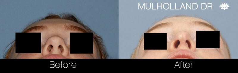Rhinoplasty - Before and After Gallery - Patient Photo 31