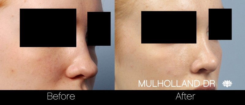 Rhinoplasty - Before and After Gallery - Patient Photo 32