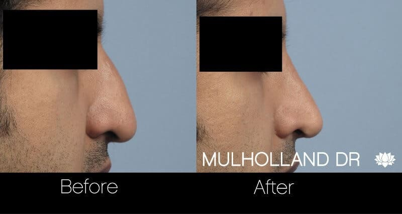 Rhinoplasty - Before and After Gallery - Patient Photo 33