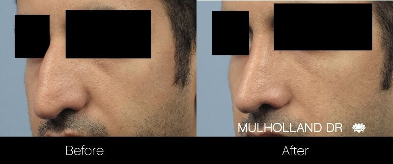Rhinoplasty - Before and After Gallery - Patient Photo 34