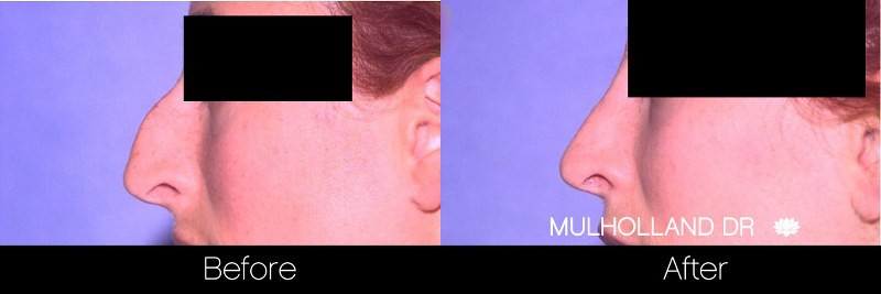 Rhinoplasty - Before and After Gallery - Patient Photo 35