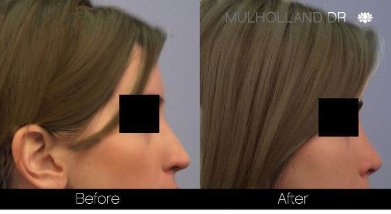 Rhinoplasty - Before and After Gallery - Patient Photo 37