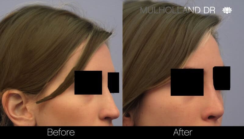 Rhinoplasty - Before and After Gallery - Patient Photo 38