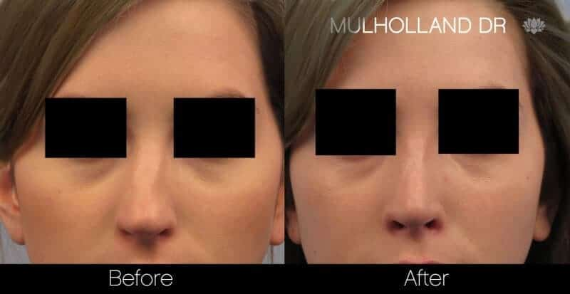 Rhinoplasty - Before and After Gallery - Patient Photo 39