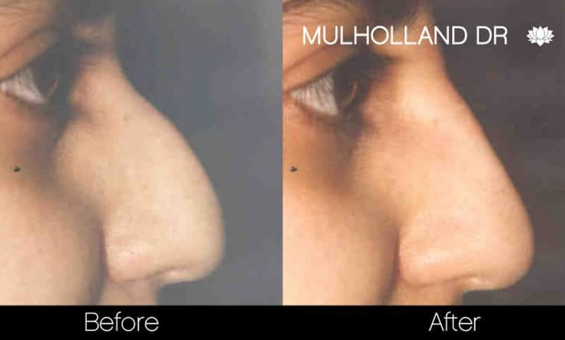 Rhinoplasty - Before and After Gallery - Patient Photo 40
