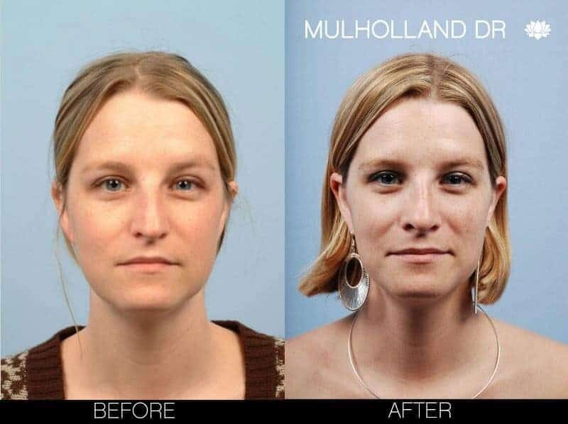Rhinoplasty - Before and After Gallery - Patient Photo 5