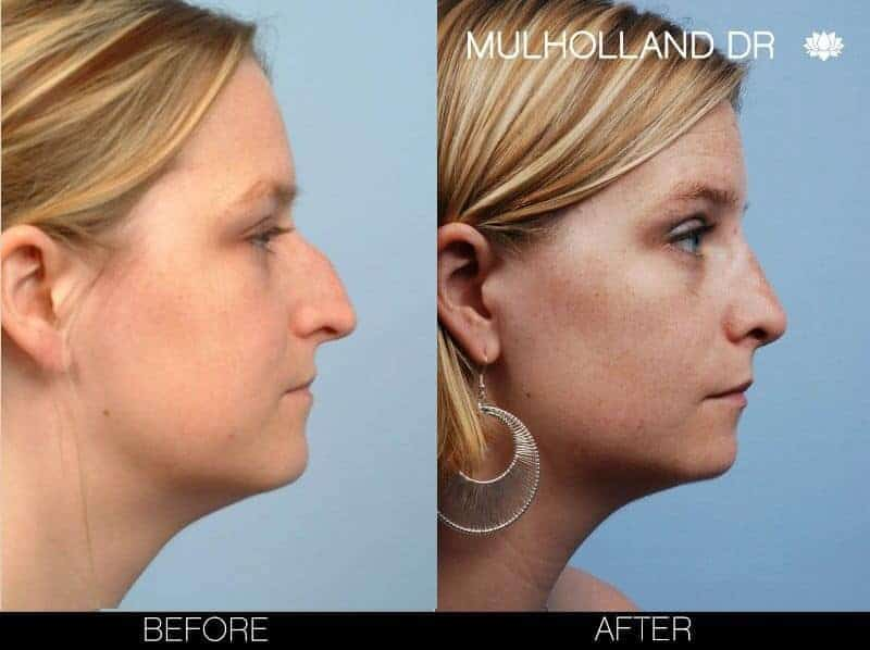 Rhinoplasty - Before and After Gallery - Patient Photo 6