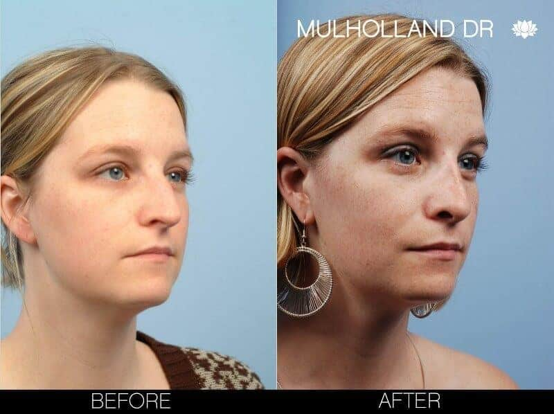 Rhinoplasty - Before and After Gallery - Patient Photo 7