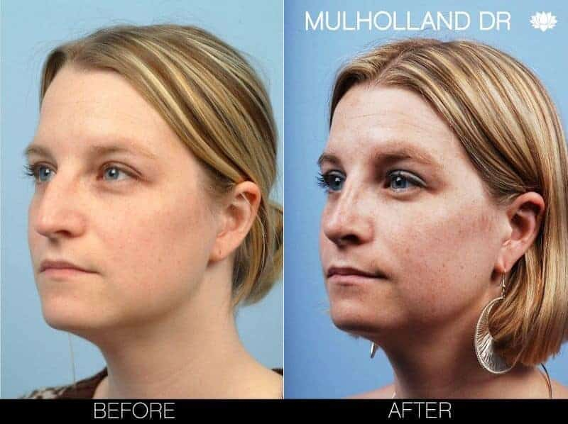 Rhinoplasty - Before and After Gallery - Patient Photo 8