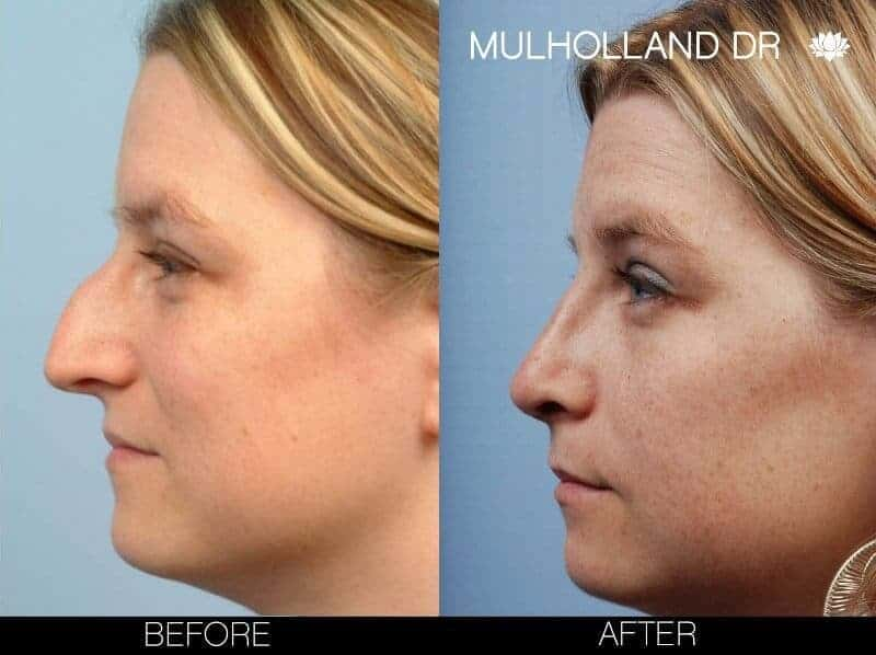 Rhinoplasty - Before and After Gallery - Patient Photo 9