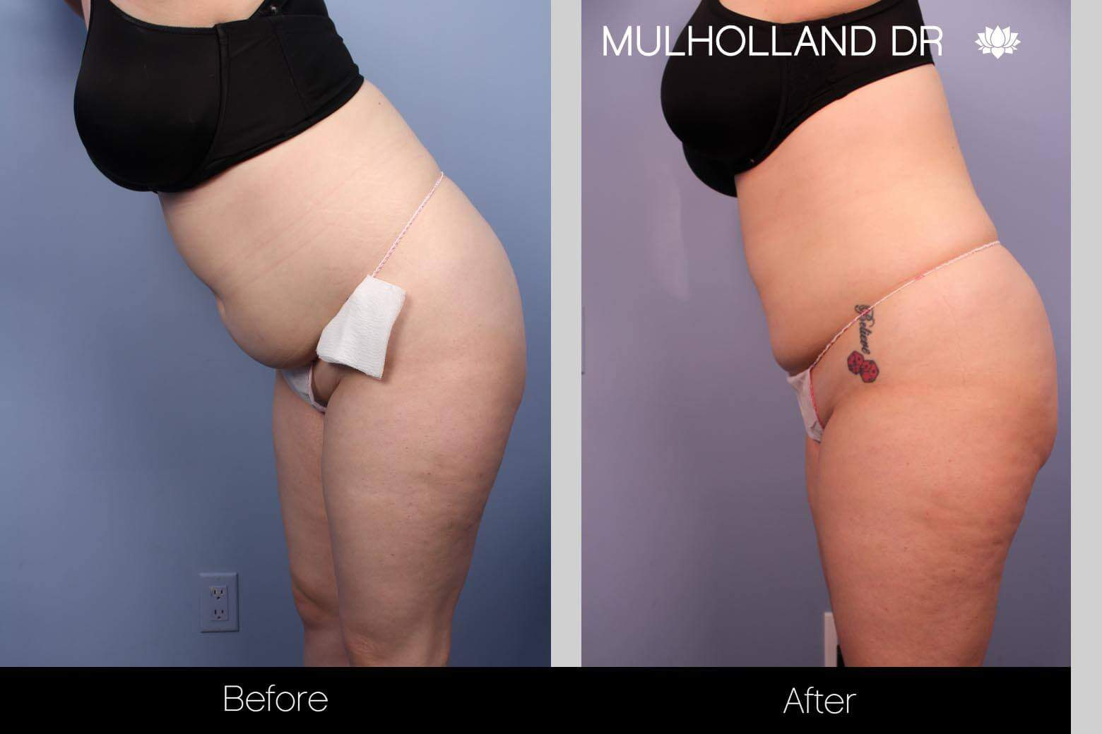 SmartLipo - Before and After Gallery - Patient Photo 27