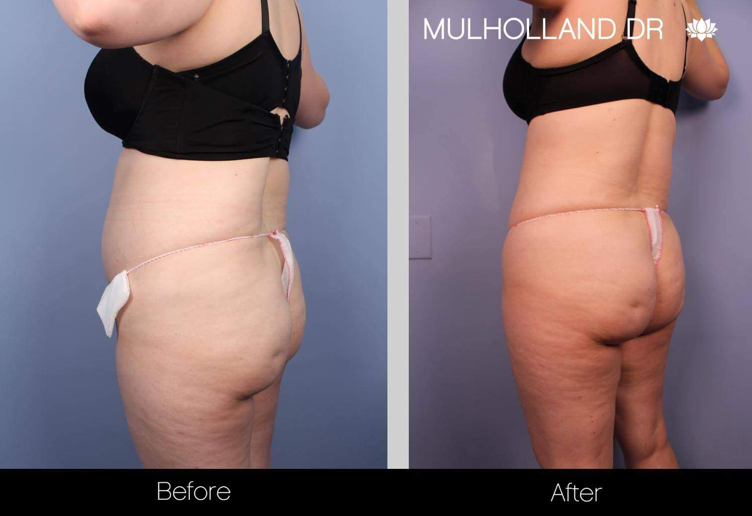 SmartLipo - Before and After Gallery - Patient Photo 28