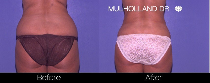 SmartLipo - Before and After Gallery - Patient Photo 47