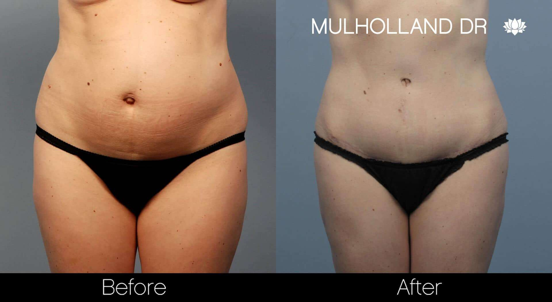 SmartLipo - Before and After Gallery - Patient Photo 56