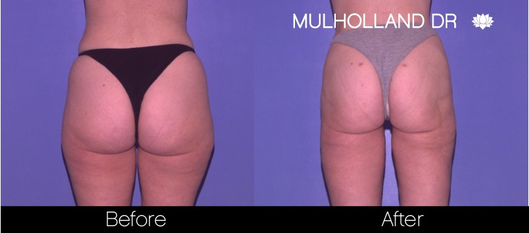 SmartLipo - Before and After Gallery - Patient Photo 58