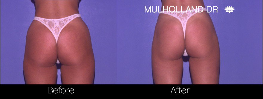 SmartLipo - Before and After Gallery - Patient Photo 60