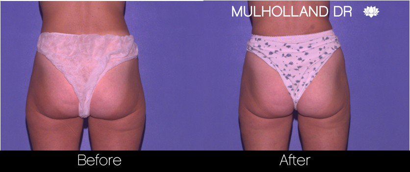 SmartLipo - Before and After Gallery - Patient Photo 64