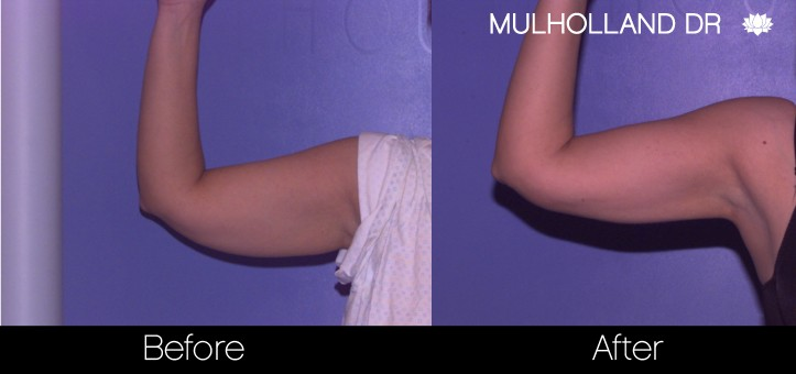 SmartLipo - Before and After Gallery - Patient Photo 70
