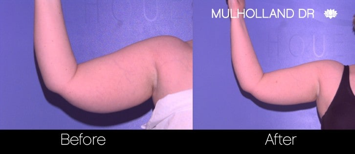 SmartLipo - Before and After Gallery - Patient Photo 72