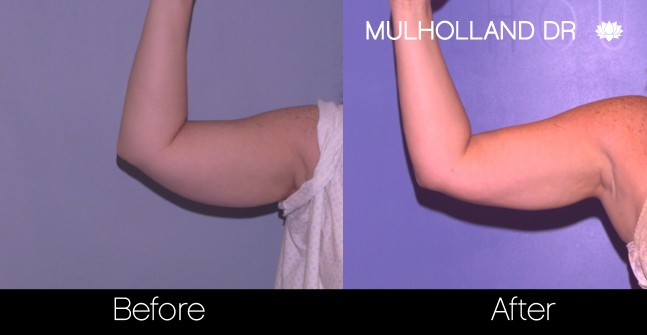 SmartLipo - Before and After Gallery - Patient Photo 74