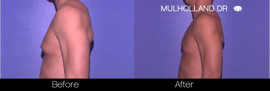 SmartLipo - Before and After Gallery - Patient Photo 76