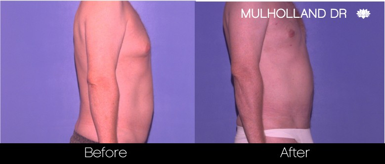 SmartLipo - Before and After Gallery - Patient Photo 83