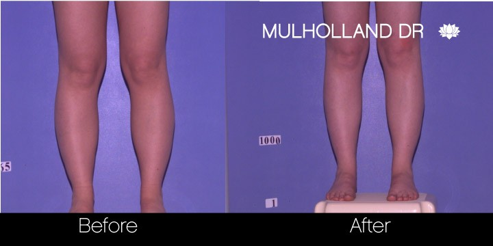SmartLipo - Before and After Gallery - Patient Photo 89