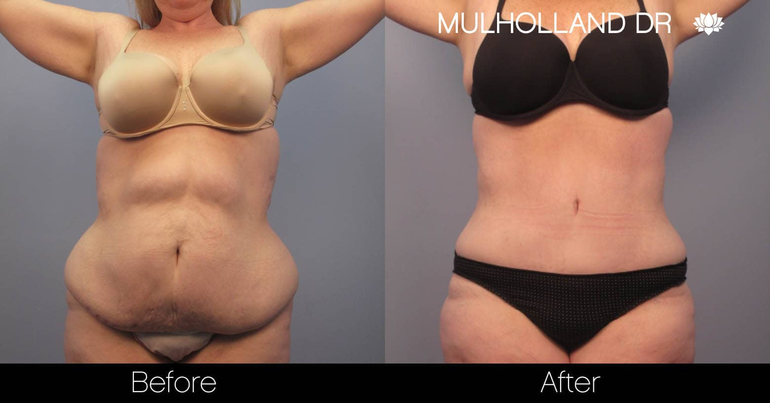 Tummy Tuck -Before and After Gallery - Patient Photo 1
