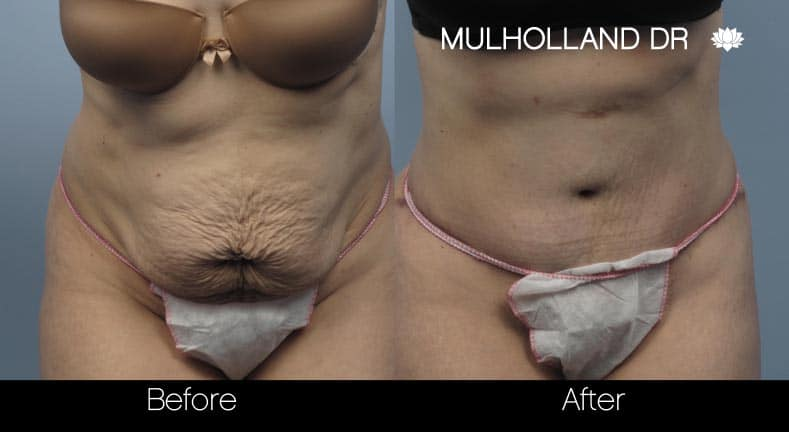 Tummy Tuck -Before and After Gallery - Patient Photo 10