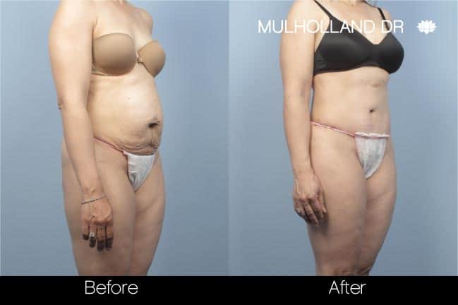 Tummy Tuck -Before and After Gallery - Patient Photo 11