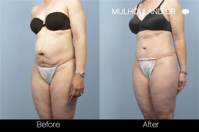 Tummy Tuck -Before and After Gallery - Patient Photo 12