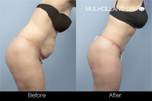 Tummy Tuck -Before and After Gallery - Patient Photo 13