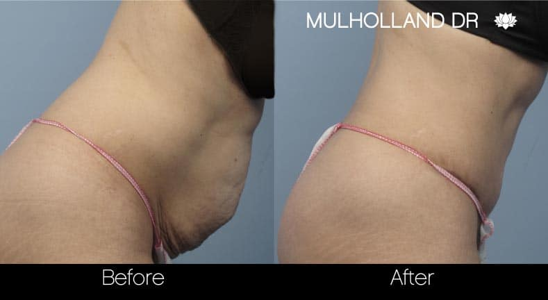 Tummy Tuck -Before and After Gallery - Patient Photo 14