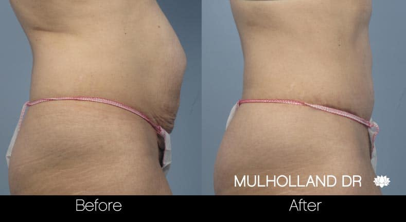 Tummy Tuck -Before and After Gallery - Patient Photo 15