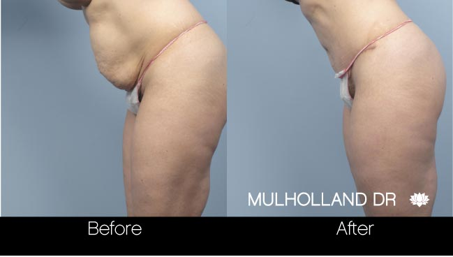 Tummy Tuck -Before and After Gallery - Patient Photo 16