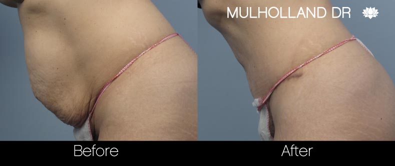Tummy Tuck -Before and After Gallery - Patient Photo 17