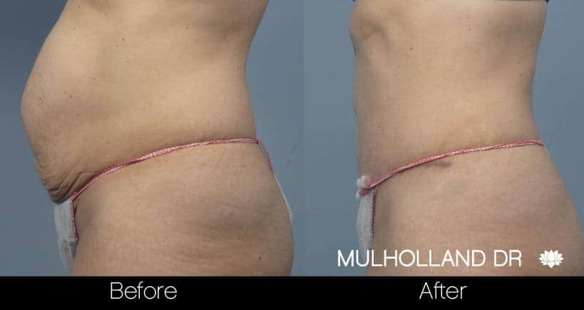Tummy Tuck -Before and After Gallery - Patient Photo 18