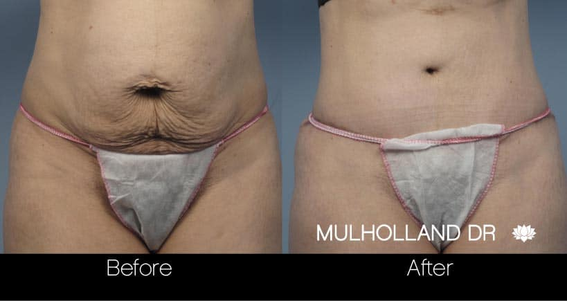 Tummy Tuck -Before and After Gallery - Patient Photo 19