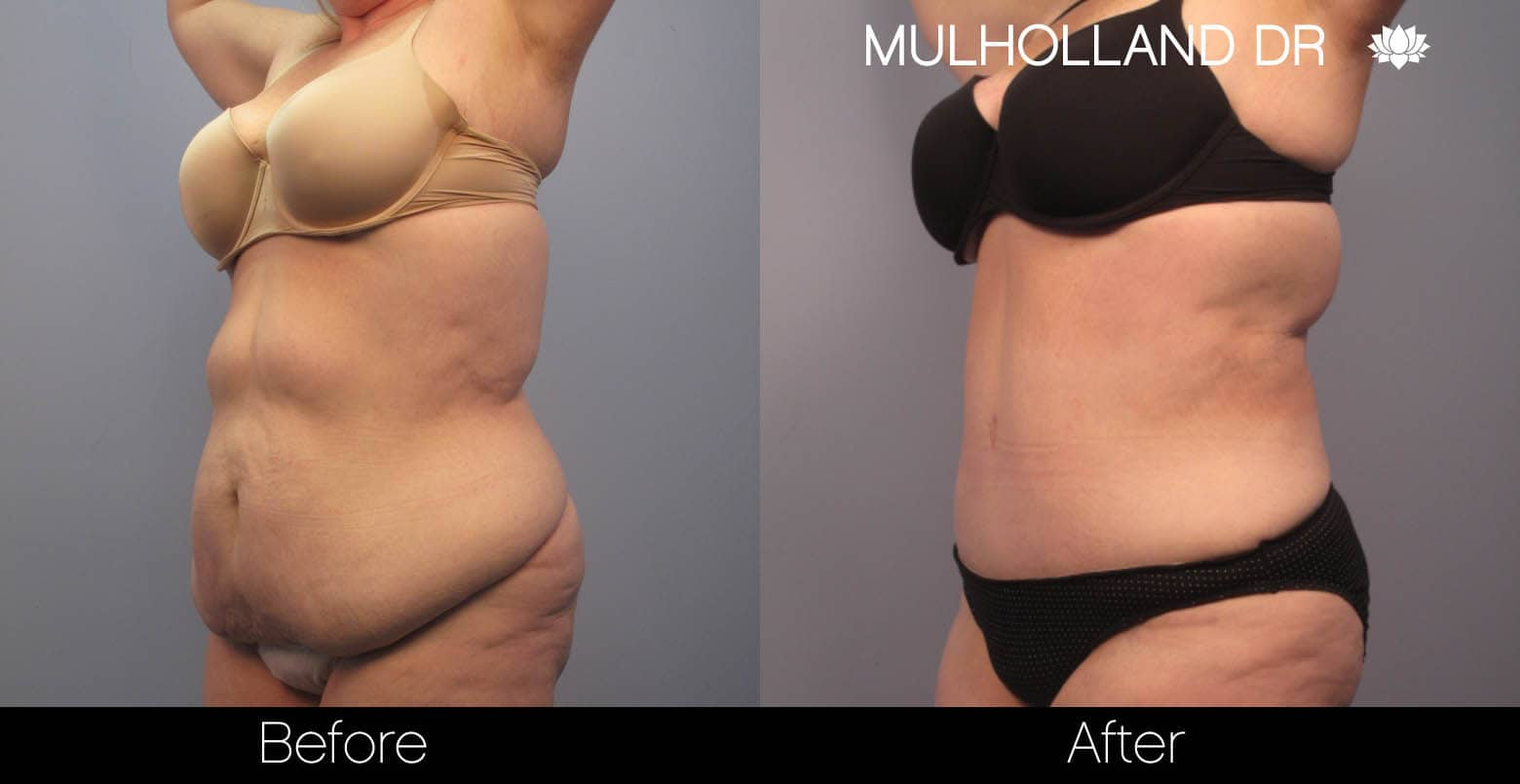 Tummy Tuck -Before and After Gallery - Patient Photo 2