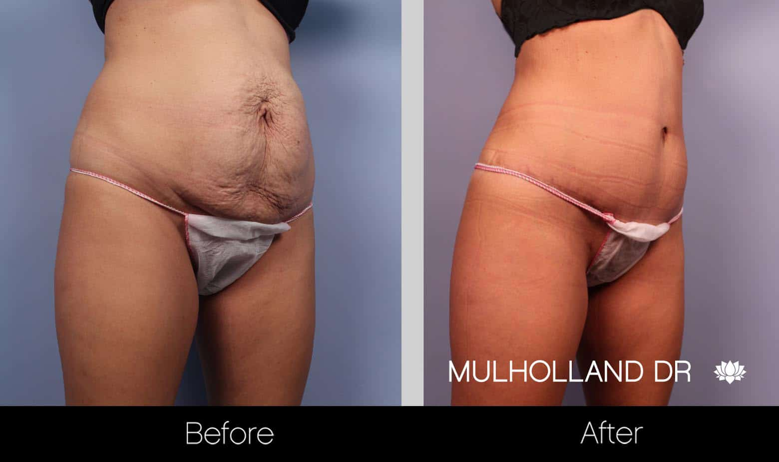 Tummy Tuck -Before and After Gallery - Patient Photo 20