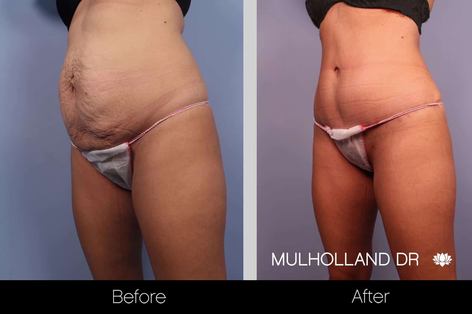 Tummy Tuck -Before and After Gallery - Patient Photo 21